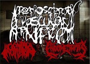 Image of ATERIOSELEROTIC VASCULAR INFECT Split CD 2013