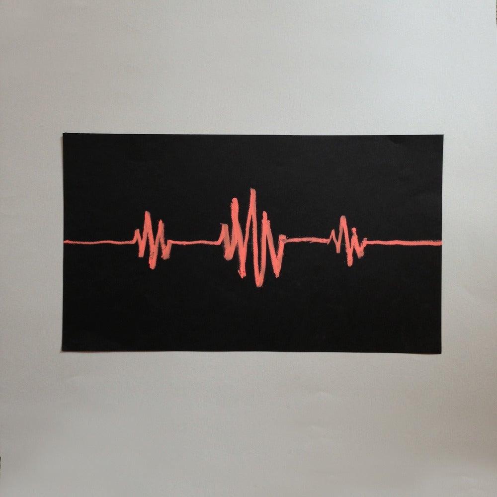 Image of EKG Original Tag