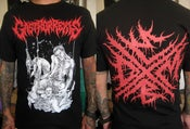 Image of GASTRORREXIS  - Official shirt