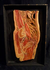 Image of SOLD: Antique Anatomical Wax Moulage #1