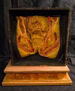 Image of SOLD: Antique Wax Moulage - Colon Cross Section