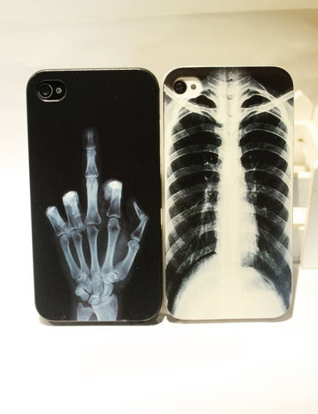 Image of X-ray Skull Bone Cover Case Iphone 4/4s/5