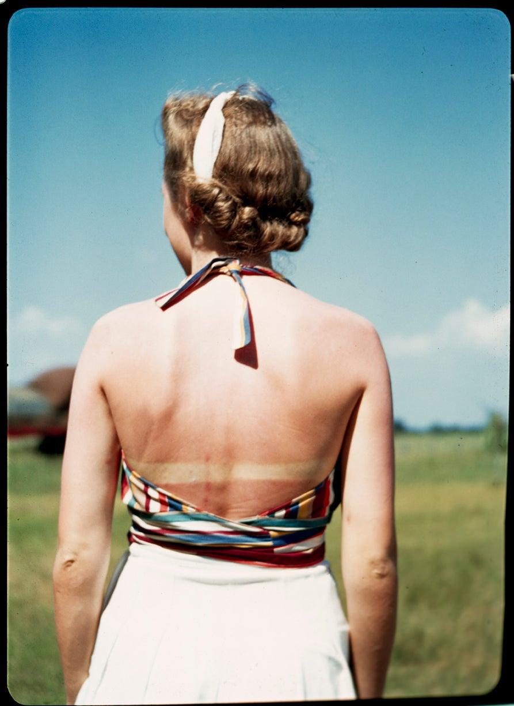 Image of 1940's gal on a farm gets a sunburn