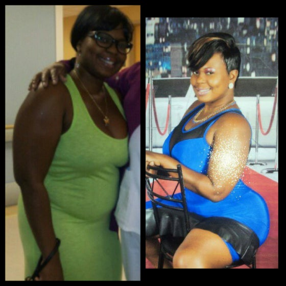 """Image of Before/After: (Waist Training and Herbalife) """"Nessa"""""""