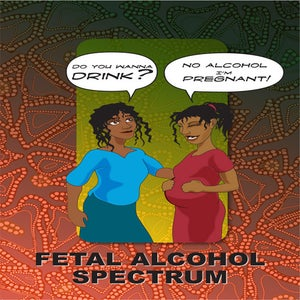 Image of FETAL ALCOHOL SPECTRUM DISORDERS.  FASD FLIPCHART (GST Incl.)
