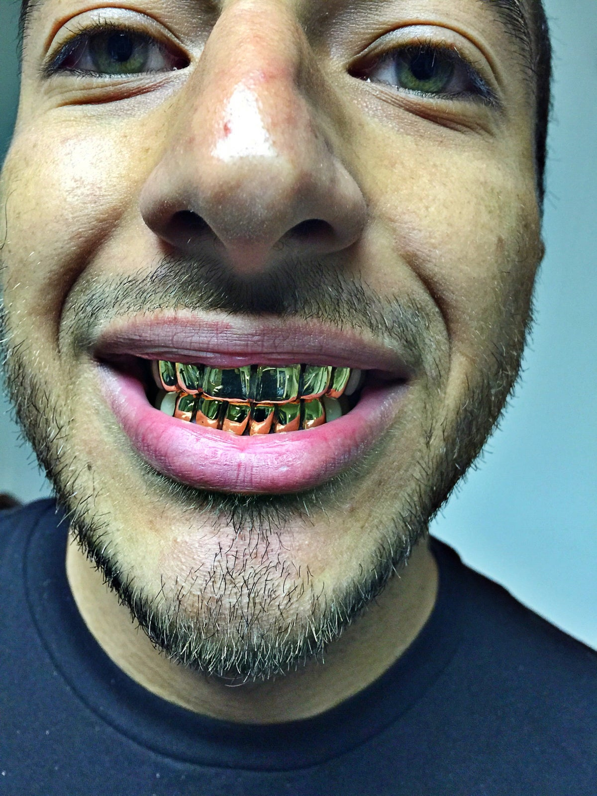 10k Yellow Gold Grill Grillworkinc