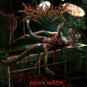 Image of NEW!!! SICK MORGUE - SURGICAL MUTATION CD/SNAP BACK CAPS