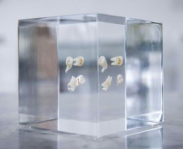 Image of AHOL Sniffs Glue's Wisdom Teeth - Set of 4