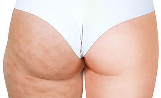 Image of Cellulite Reduction treatment