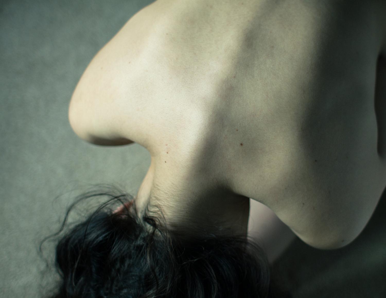 Image of Fetal