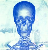 "Image of ""Studies of a Skull""- Face View, LIMITED EDITION Screen Print Anatomical Lowbrow Art, C.T scan"