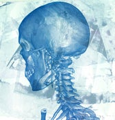 "Image of ""Studies of a Skull""-left 120 degree View, LIMITED EDITION Screen Print Anatomical Lowbrow Art, C.T"