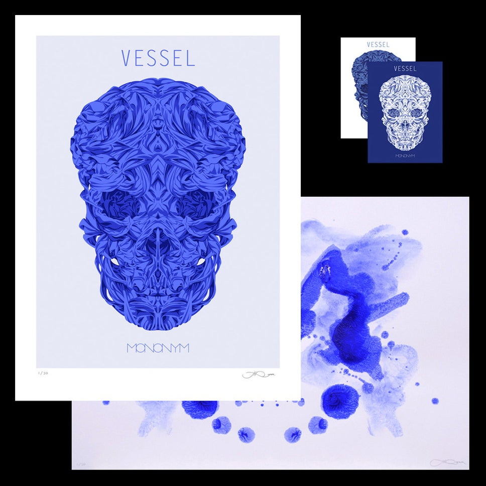 Image of Vessel Bundle